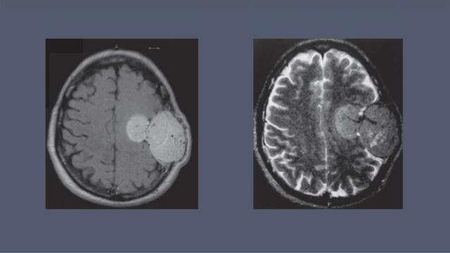 Wanita 43 Tahun Dengan Meningeal Hemangiopericytoma